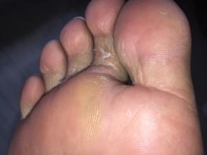 趾間型(しかんがた)2