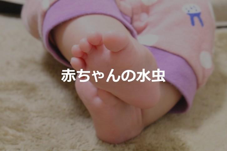 【赤ちゃんの水虫】赤ちゃんの手足にできる水疱は水虫の可能性が高い