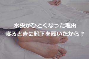 水虫寝るとき靴下