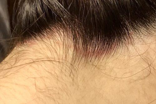 生え際の頭皮